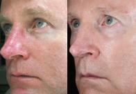 Доктор Джеффри Хибер проходил 2 процедуры на лазере IPL. На протяжении всего периода использовал домашний уход Ultraceuticals.